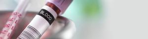 آزمایش گاز خون شریانی چیست و به چه دلیل انجام میشود - بخش (1)