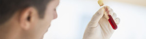 آزمایش خون و تجزیه و تحلیل آزمایشگاهی: آنچه باید دربارهی آزمایش خون بدانید (2) - پازیست آرایه