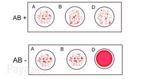 آزمایش گروههای خونی - پایازیست